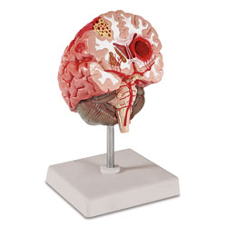 Large view Pathological Model of Brain
